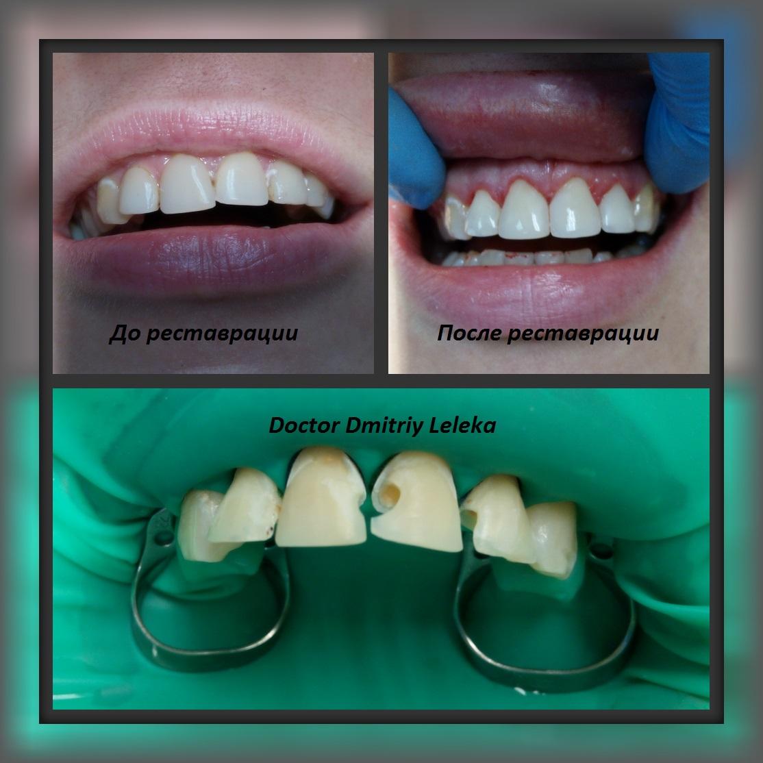 Сколько служат депульпированные зубы